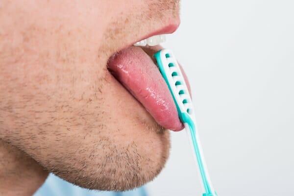 Papilloma alsó nyelv kezelés | PapiSTOP