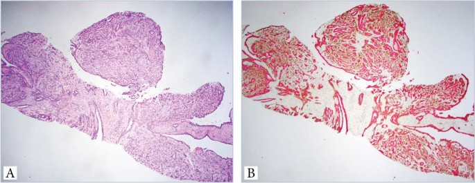 intraductalis papilloma és tabletta)