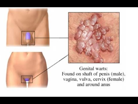 mi a pénisz condyloma