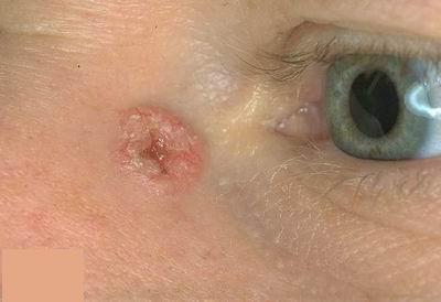 melanotikus rák szarkóma)
