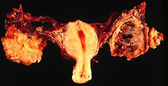 az endometrium rákja milyen gyorsan terjed