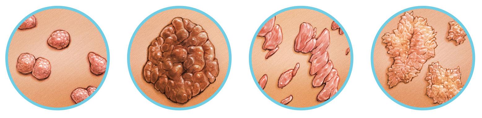condyloma a klitoris fórumon férgek kezelése és megelőzése