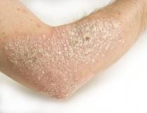 paraziták elleni allergia kezelése