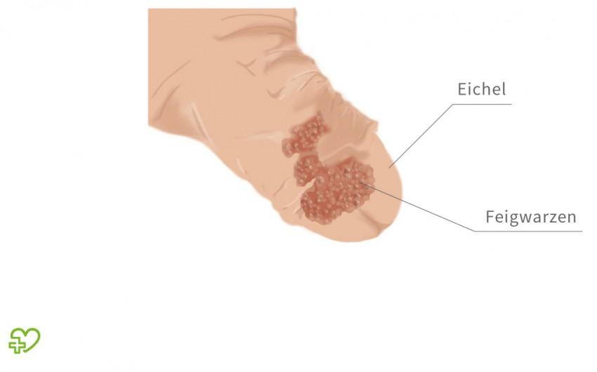 HPV-szűrés és tipizálás - paperweb.hu