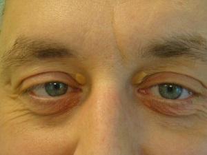 A szem és a szemhéj szemölcsök. A kezelésről beszélünk