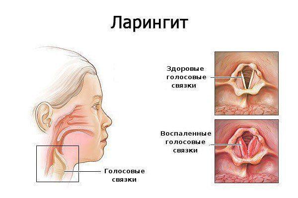Távolítsa el a papillómákat Murmanszk árából. A HPV hatékony kezelése