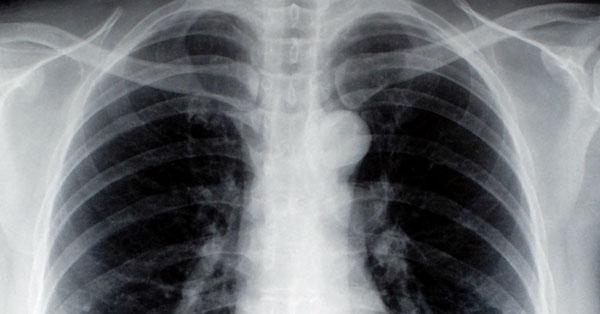 hörgőrák tünetei a gyomorrák megöl