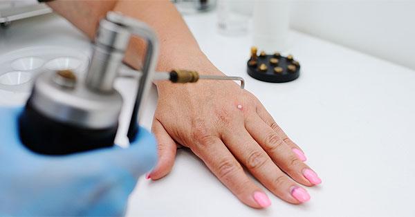 cheloo kapcsolat a kezeken lévő szemölcsök genetikai