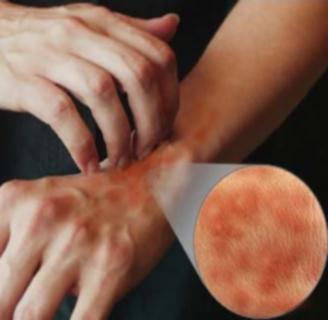 allergiás lehet a féreg gyógyszerekre