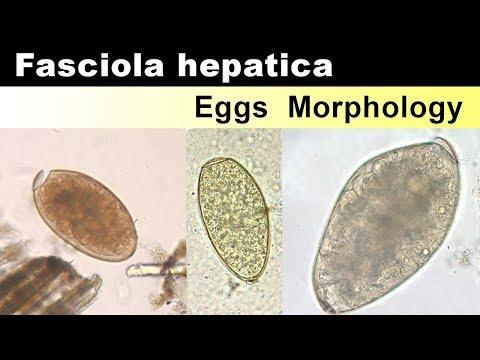 a fascioliasis értéke papillomavírus nem súlyos