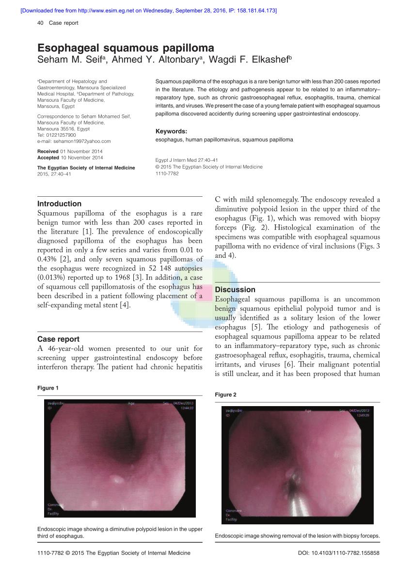2 cm-es hólyag papilloma