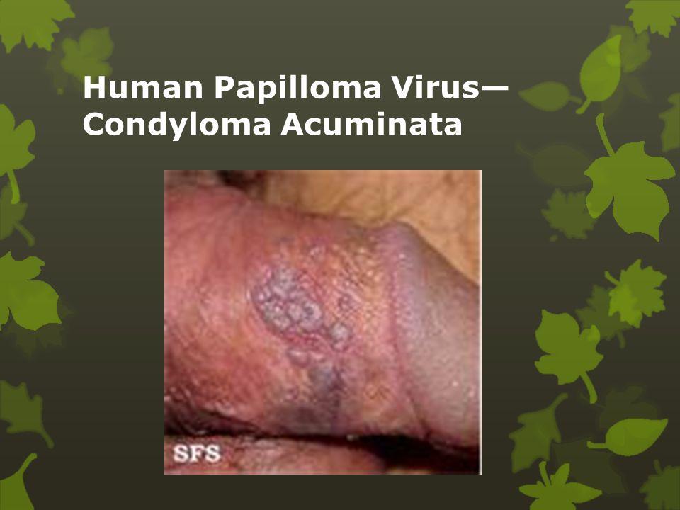 papilloma vírus és candida mik a szemölcsök és megjelenésük okai