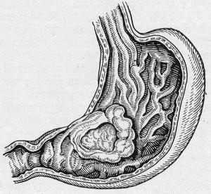 Gyomorrák tünetei és kezelése - HáziPatika
