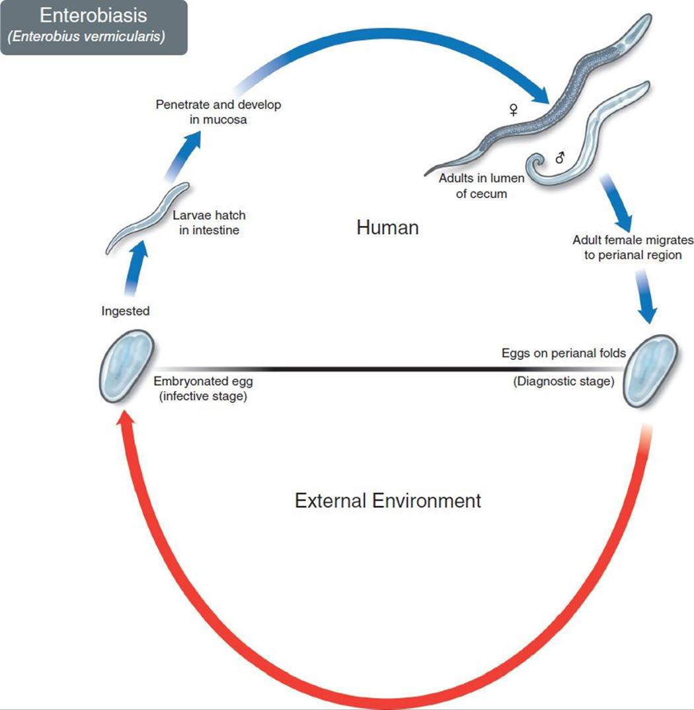 enterobius usmle