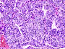 endometrium rák medscape