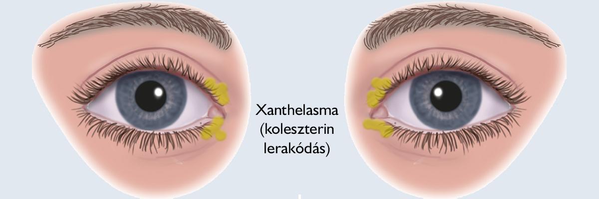 hogyan lehet eltávolítani a szemölcsöket a szemhéjról