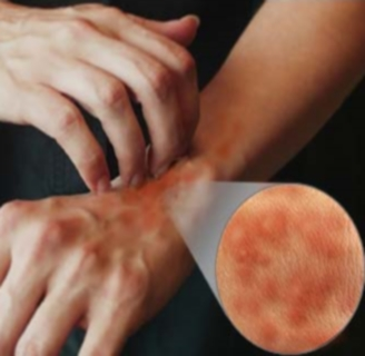 allergiás lehet a féreg gyógyszerekre)