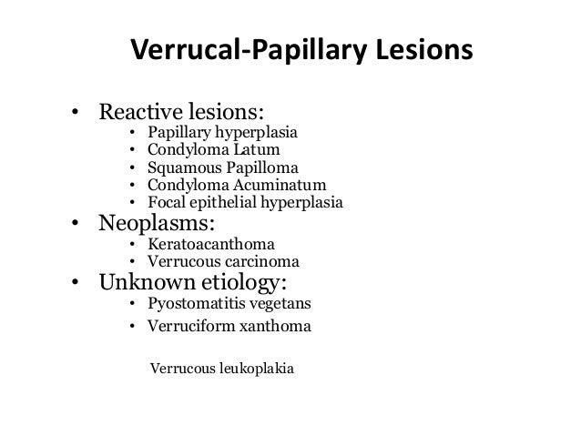 condyloma koaguláció