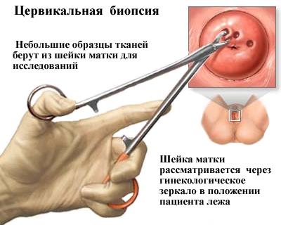 papilloma vírus pozitív biopszia