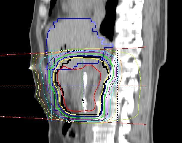 kolorektális oligometasztatikus rák genitális szemölcsök a nyálkahártyán