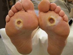 szemölcs cukorbeteg láb)