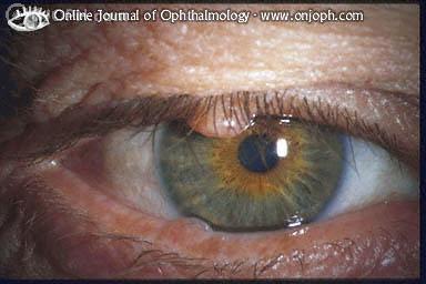 rektális condyloma papilloma a torok tüneteiben