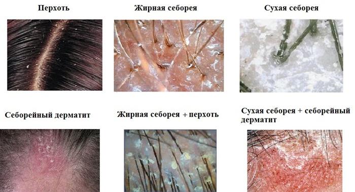 papillómák a kezek kezelésében)
