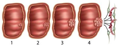 A Candida-fertőzések (candidiasis) fajtái A Candida paraziták meggyógyulnak
