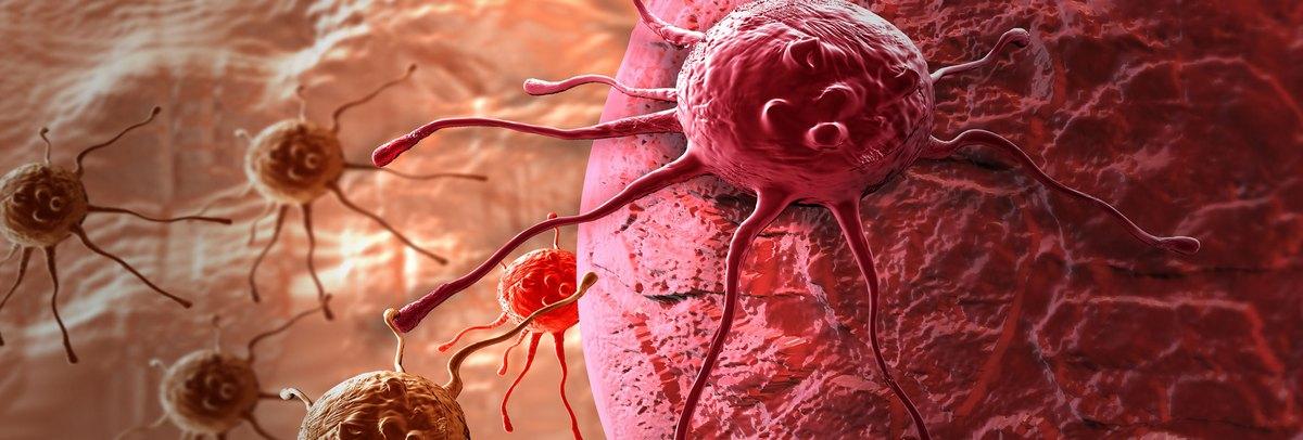 A rák stádiumai