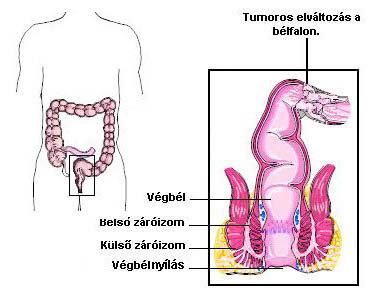 diagnosztikus vastagbélrák)
