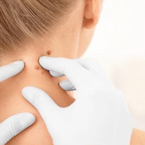 a nyaki szemölcsök kezelése