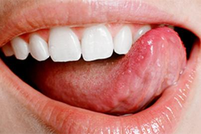 A szájban is támad a Humán Papilloma Vírus | harsfavirag.hu