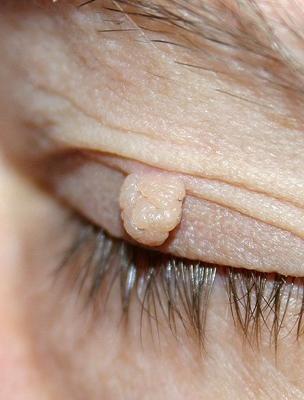 méregtelenítő foltok fórum orr papilloma