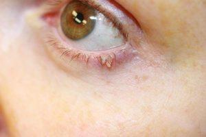 kenet pozitív papillomavírus