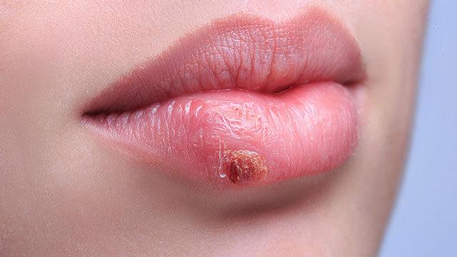 a condyloma kezelése a szájban