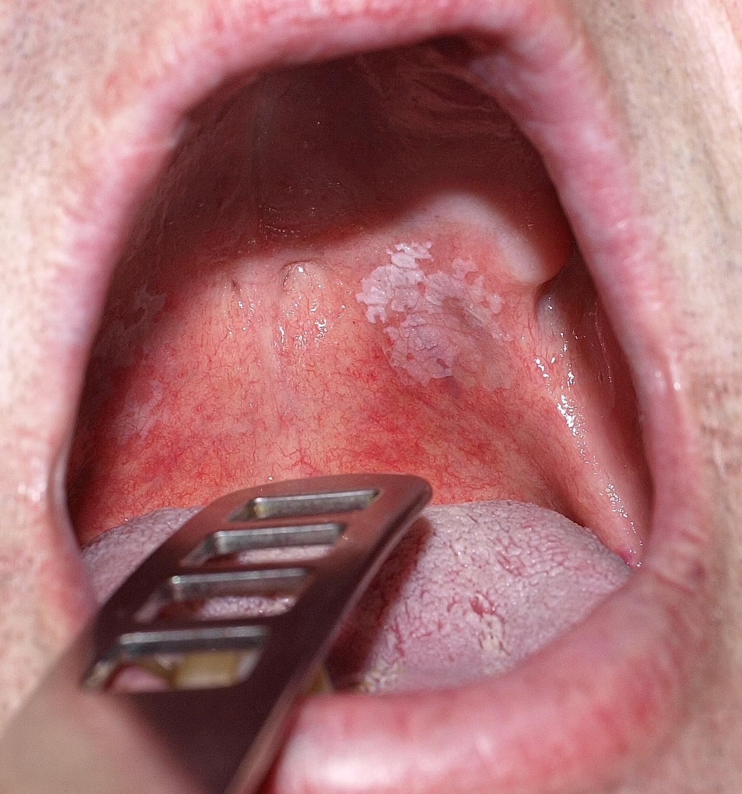 papilloma a szájnyálkahártyán