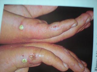 gyomorrák diagnózis