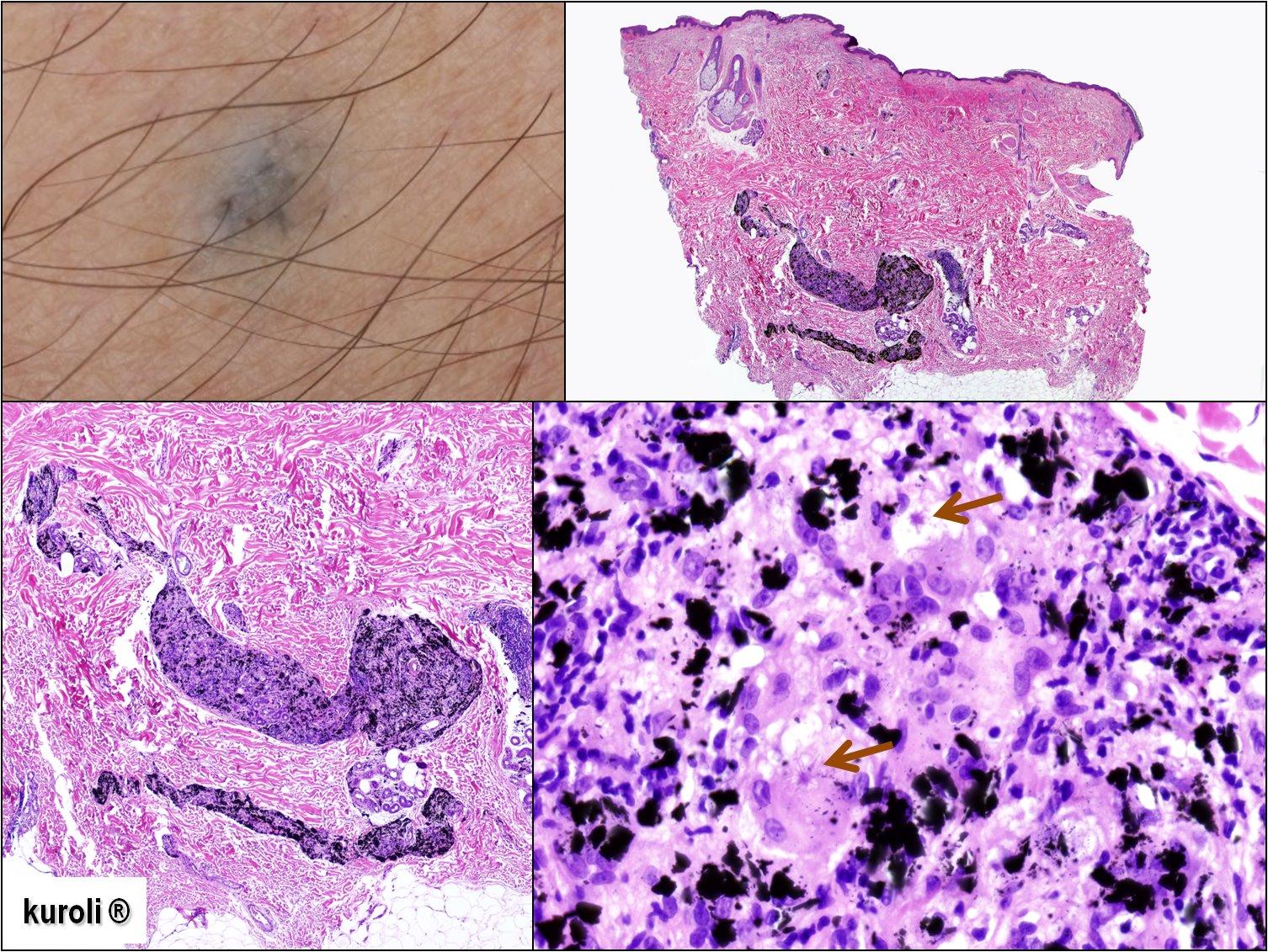 szabálytalan papillomatosis acanthosis hogyan lehet megnyugtatni a pinwormák viszketését