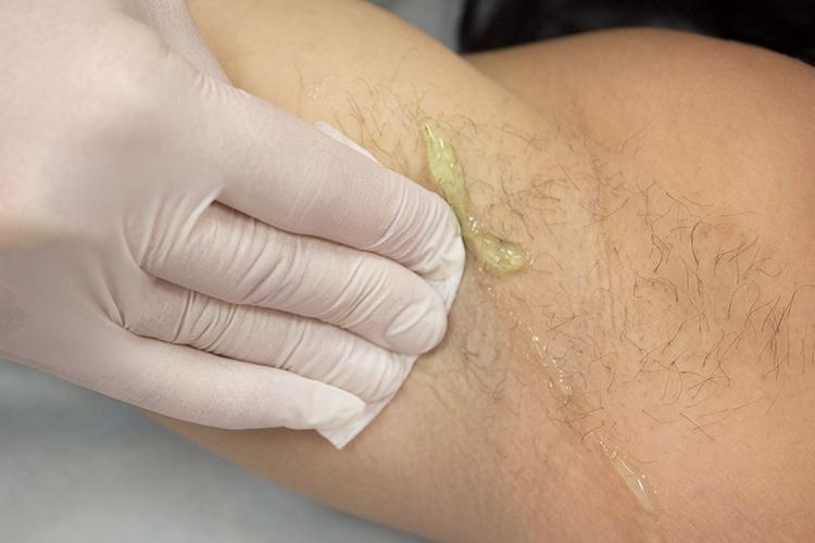 papilloma vírus nyelvdaganat genitális papilloma képek
