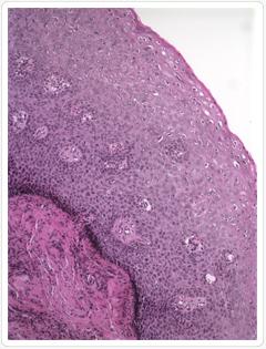 hogy néz ki a condyloma a hüvely előestéjén férgek kezelése a bőrön