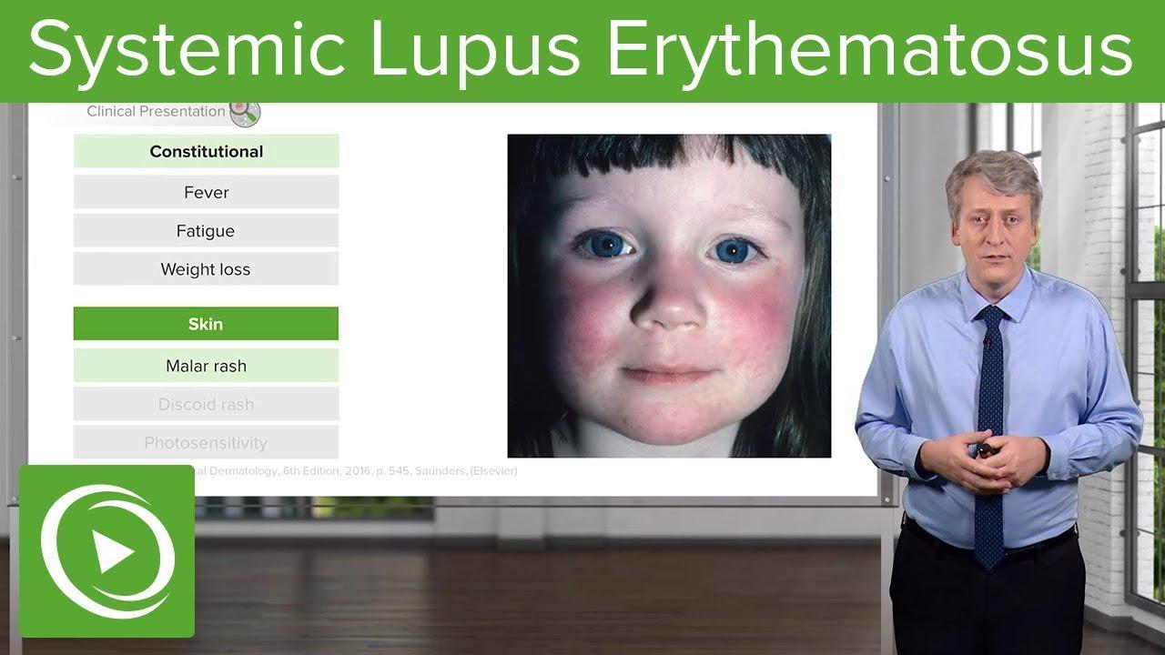 helmintikus terápia lupus)