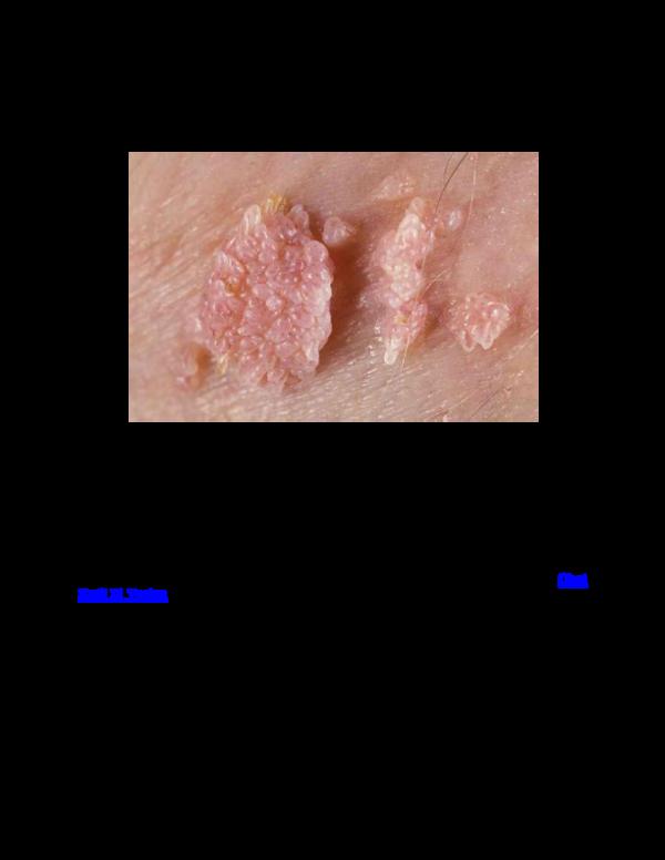 gejala papilloma vírus