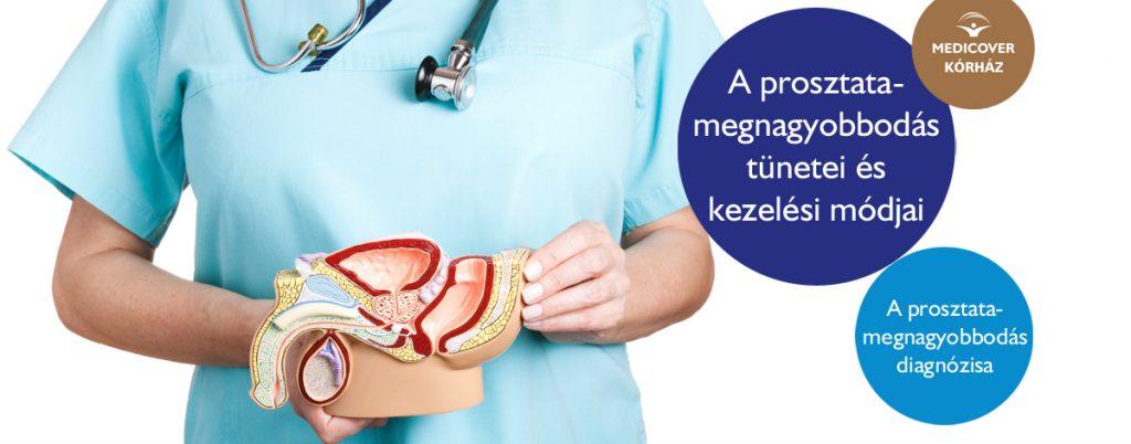 prosztatarák jóindulatú hipertrófiája)