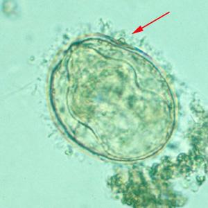 schistosomiasis nedir