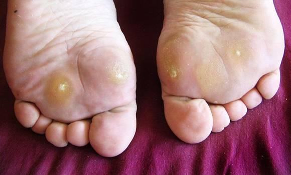 rögtönzött féreghajtók szemölcs a lábfájdalomtól
