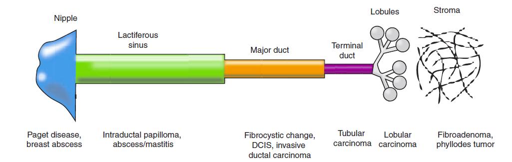 papilloma lactiferous csatorna)