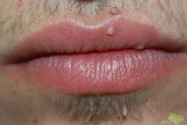papillomavírus nőknél)