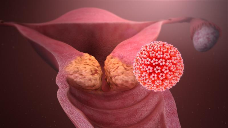 papilloma vírus tumor)