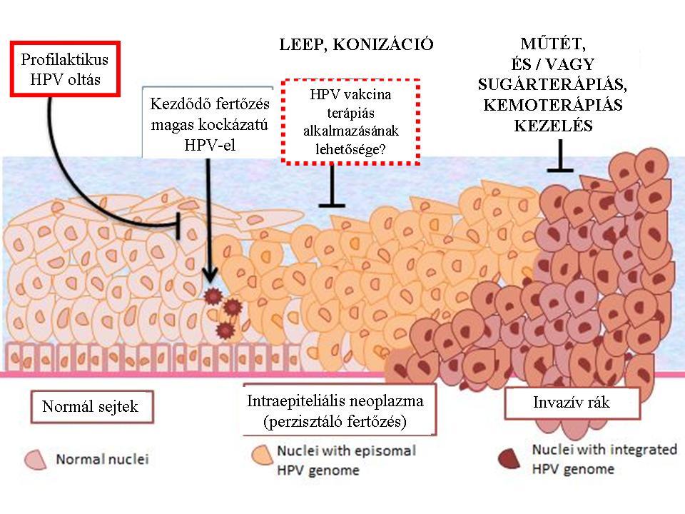 hpv magas kockázatú sejtek)