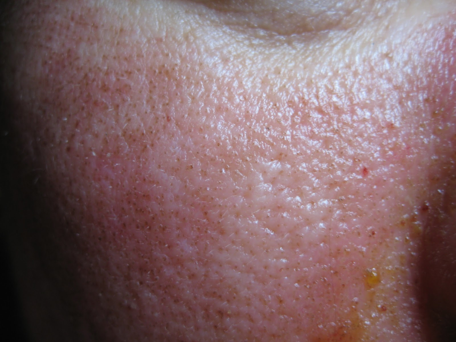 A humán papilloma vírus
